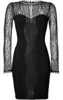Emilio Pucci Lace Top Dress in Black - Lyst