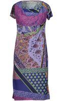 Etro Short Dress - Lyst