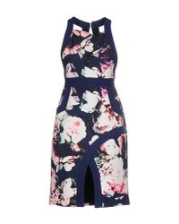 Finders Keepers - Blue Knee-length Dress - Lyst