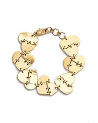 Marc By Marc Jacobs - Metallic 'broken Hearted' Bracelet - Oro - Lyst