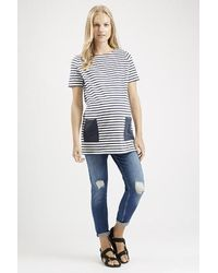 Topshop Maternity Striped Pocket Tunic - Lyst