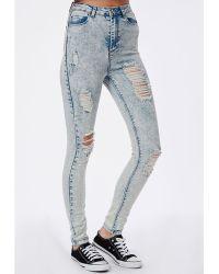 Missguided Edie High Waist Multi Rip Skinny Jeans Blue Acid Wash - Lyst