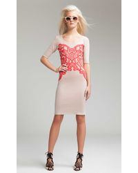 Temperley London Fitted Aragon Dress - Lyst