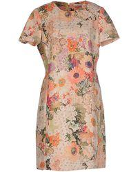 Tory Burch | Short Dress | Lyst