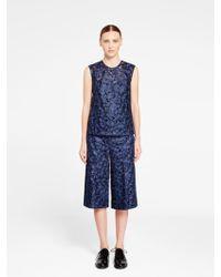 DKNY | Long Lace Shorts | Lyst