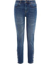 Karen Millen - Buttoned Hem Skinny Jeans - Lyst