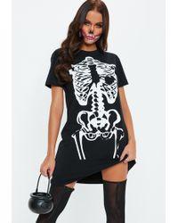 Missguided - Black Oversized Skeleton T Shirt Dress - Lyst