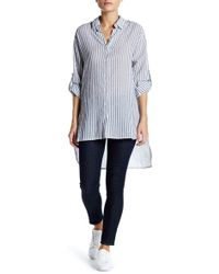 Dress Forum - Striped Tunic Blouse - Lyst